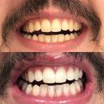 Best Teeth Whitening Dentist in Buderim