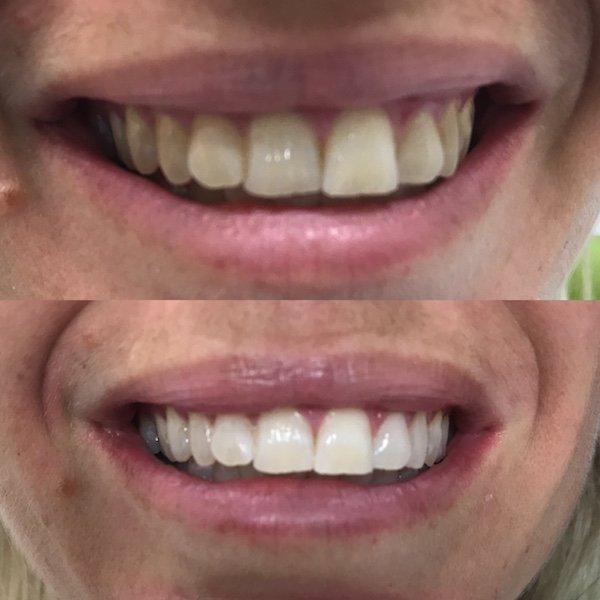 Teeth Whitening in Buderim