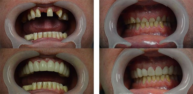 Cosmetic dentistry in buderim - Snap-on smile Before and after
