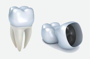 Dental Crown and Bridge in Buderim