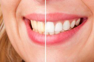 Professional teeth whitening service
