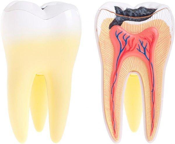 Tooth Decay | Dentist Budrim