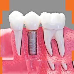 Dental Emergency - Lost Tooth Filling or Dental Crown